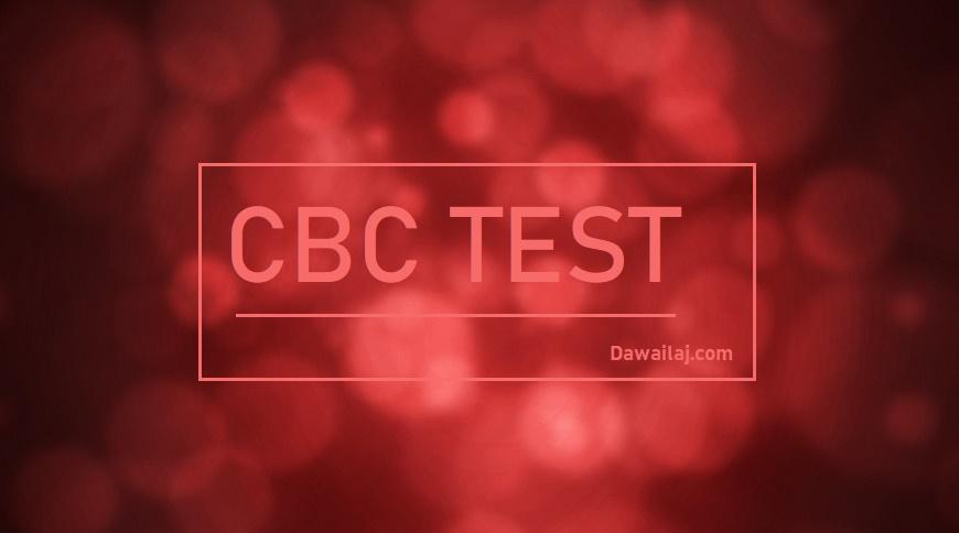 CBC Test सीबीसी टेस्ट क्या है सबसे सस्ता ब्लड टेस्ट कैसे करवाये