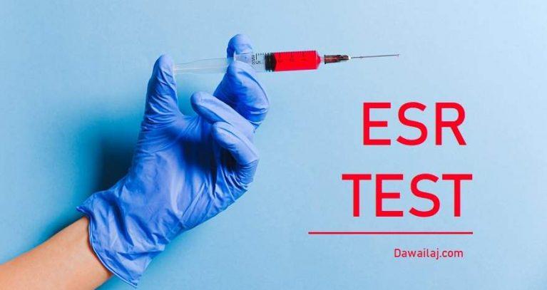 ESR Test Normal Range क्या है सबसे सस्ता टेस्ट कैसे करवाये