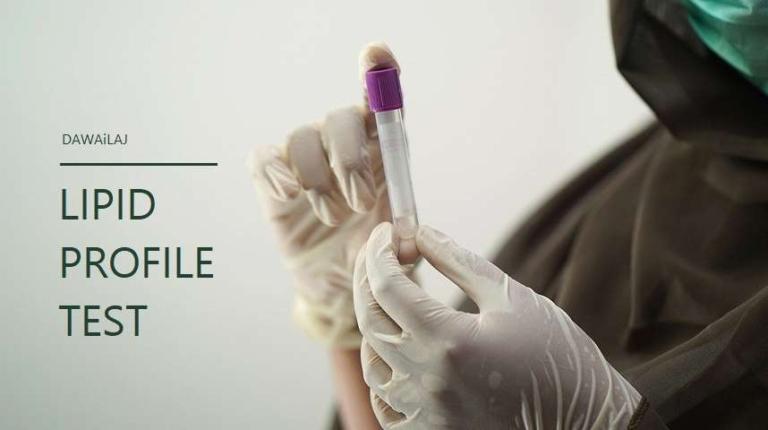 Lipid Profile Test In Hindi लिपिड प्रोफाइल कोलेस्ट्रॉल टेस्ट क्या है
